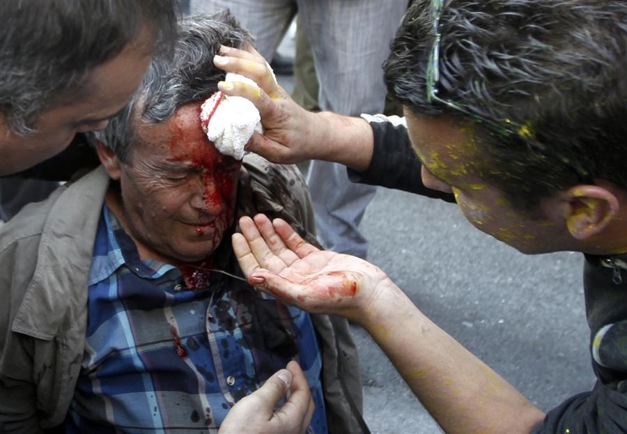 Один из пострадавших во время столкновения перед зданием Парламента в Афинах, 20 октября