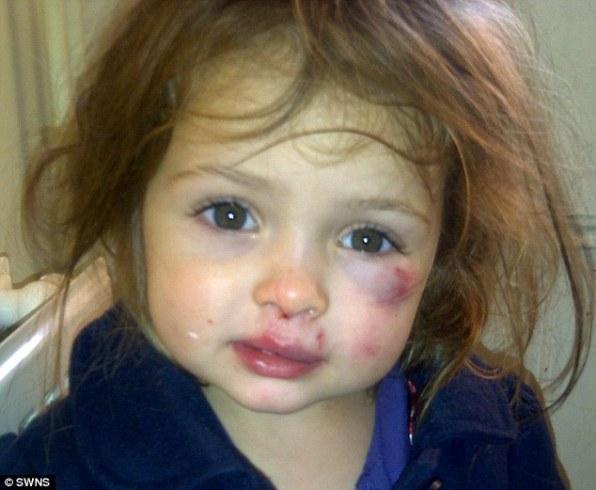 3-летняя Кэти Энн после атаки 2-летней одногрупницы детского сада