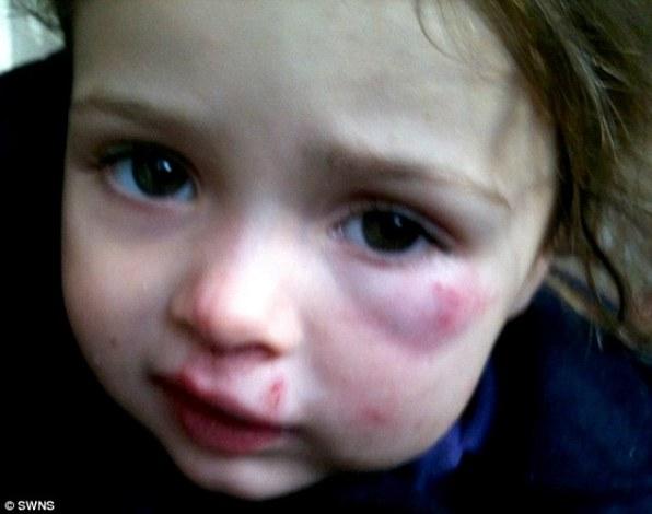 Кэти была доставлена в больницу с ушибом глазницы, ее левый глаз потерял зрение